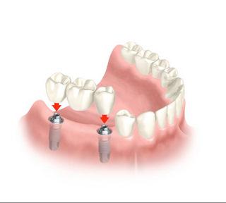 Darstellung einer Brücke auf 2 Implantaten