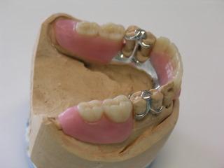 Unterkiefer Teilprothese