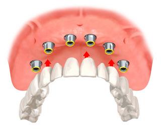 Darstellung einer Implantatbrücke zum Ersatz aller Zähne